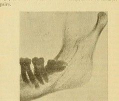 This image is taken from Page 84 of L'art dentaire en médecine légale (Medical Heritage Library, Inc.) Tags: forensic dentistry tooth dentisterie malformations anatomie comparã©e bouche odontologie mã©dicolã©gale livres rares dental jurisprudence dent dents columbialongmhl medicalheritagelibrary columbiauniversitylibraries americana date1898 idlartdentaireenm00amo