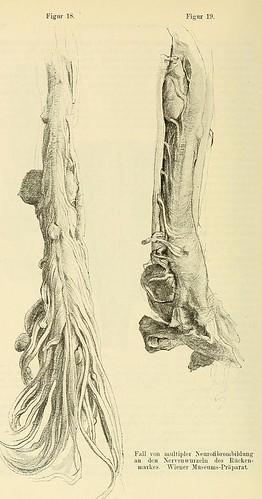 This image is taken from Page 40 of Beiträge zur Klinik der Rückenmarks- und Wirbeltumoren