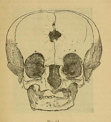 This image is taken from Page 555 of L'art dentaire en médecine légale (Medical Heritage Library, Inc.) Tags: forensic dentistry tooth dentisterie malformations anatomie comparã©e bouche odontologie mã©dicolã©gale livres rares dental jurisprudence dent dents columbialongmhl medicalheritagelibrary columbiauniversitylibraries americana date1898 idlartdentaireenm00amo
