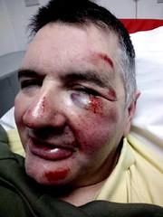could be worse (steve p2008) Tags: bruise graze injury swallon blackandblue wontdothatagain
