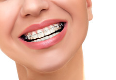 Orthodontic Treatment. Dental Brackets. (burbankcitydental) Tags: adult beautiful beautifulface beautifulsmile beautifulwomansmiling beauty beautyface braces brackets care casual caucasian ceramic clear concept dental dentalcare dentist dentistry dentistsmile detail equipment face female femaleface girl health healthy individual isolated laugh lips macro metal mouth open openmouth oral orthodont orthodontics orthodontist people peoplelaughing peoplesmiling person portrait pure selfligating smile smileteeth smilingface smilingpeople smilingwoman smooth stomatology tooth transparent white whitening whiteteeth woman womanlaughing young