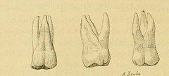 This image is taken from Page 58 of L'art dentaire en médecine légale (Medical Heritage Library, Inc.) Tags: forensic dentistry tooth dentisterie malformations anatomie comparã©e bouche odontologie mã©dicolã©gale livres rares dental jurisprudence dent dents columbialongmhl medicalheritagelibrary columbiauniversitylibraries americana date1898 idlartdentaireenm00amo