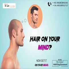 Hair Patch in Delhi (sharma245.lokesh) Tags: hair patch delhi