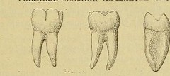 This image is taken from Page 65 of L'art dentaire en médecine légale (Medical Heritage Library, Inc.) Tags: forensic dentistry tooth dentisterie malformations anatomie comparã©e bouche odontologie mã©dicolã©gale livres rares dental jurisprudence dent dents columbialongmhl medicalheritagelibrary columbiauniversitylibraries americana date1898 idlartdentaireenm00amo
