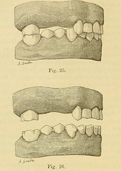 This image is taken from Page 92 of L'art dentaire en médecine légale (Medical Heritage Library, Inc.) Tags: forensic dentistry tooth dentisterie malformations anatomie comparã©e bouche odontologie mã©dicolã©gale livres rares dental jurisprudence dent dents columbialongmhl medicalheritagelibrary columbiauniversitylibraries americana date1898 idlartdentaireenm00amo