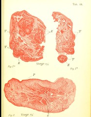 This image is taken from Atlas and abstract of the diseases of the larynx [electronic resource] (Medical Heritage Library, Inc.) Tags: laryngeal diseases laryngoscopy wellcomelibrary ukmhl medicalheritagelibrary europeanlibraries date1898 idb20417196
