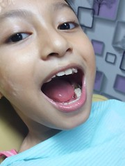 tooth extraction (ghostgirl_Annver) Tags: asia asian girl annver teen preteen child kid daughter sister family portrait face mouth teeth tooth doctor extraction