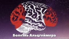 Что такое болезнь Альцгеймера и что её связывает с деменцией? (netbolezniamru) Tags: деменция альцгеймер мозг память нервнаясистема депрессия нарушениесна бессонница здоровье медицина netbolezniamru
