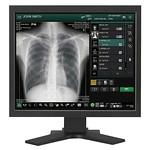 X線医療画像処理ユニットの写真