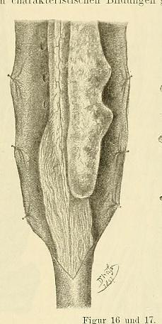 This image is taken from Page 39 of Beiträge zur Klinik der Rückenmarks- und Wirbeltumoren