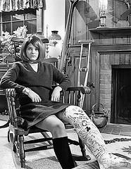 1960s LLC Skiing accident (jackcast2015) Tags: disabledwoman crippledwoman crutches brokenleg legcast longlegcast handicappedwoman cast disabled miniskirt