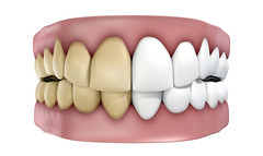 Teeth Set Isolated (dentcure11) Tags: yellow clean stained unkempt compare tooth bleached white denture stain whitening treatment dental smile stomatology color beauty dentist mouth hygiene relook improvement healthcare perfection freshness false studioshot gums isolated concept difference