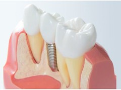 Glenlake Dental Care (newone39) Tags: dentist dentalcare smile glenviewdentist glenview