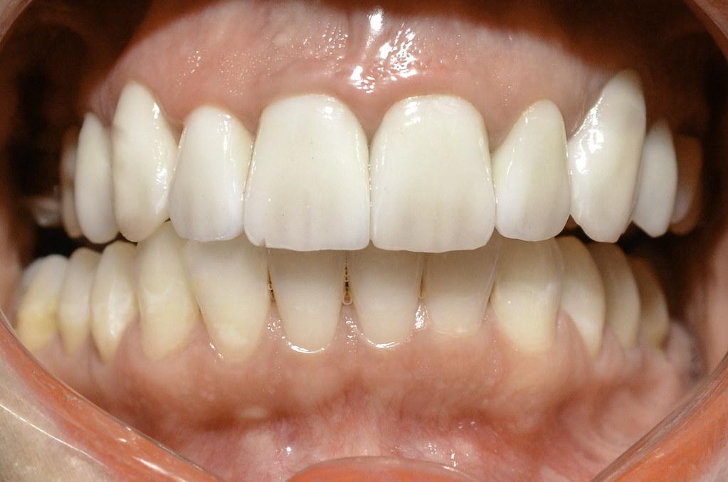 Clínica Odonto Cabral - Paciente Josi - Pós-tratamento - Fotos Filipe Diniz -26 003dfa407d