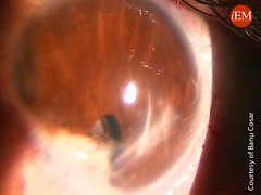 815 - ectopic pupil after penetrated eye trauma (iem-student.org) Tags: eye trauma injury orbital