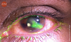 837 - eye penetran trauma 3 (iem-student.org) Tags: penetrating eye injury globe trauma puncture