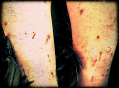 13. war wounds (theemcrow) Tags: crow feathers legs scabs scars selfie self portrait