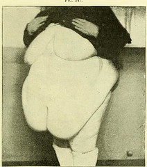 This image is taken from An American textbook of gynecology [electronic resource] : medical and surgical, for practitioners and students (Medical Heritage Library, Inc.) Tags: gynecology wellcomelibrary ukmhl medicalheritagelibrary europeanlibraries date1894 idb20412460