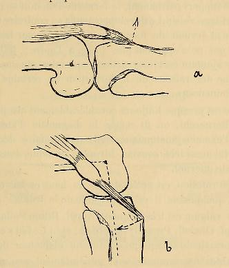 This image is taken from Page 155 of ÃÂtude sur les malformations congénitales du genou