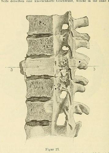 This image is taken from Page 66 of Beiträge zur Klinik der Rückenmarks- und Wirbeltumoren