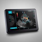 Ultrasound Systemの写真