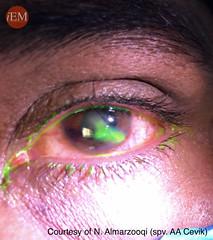 819.2 - eye penetran trauma 2 -siedel sign (iem-student.org) Tags: perforation injury penetration eye siedel globe