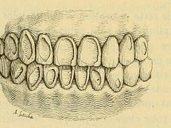 This image is taken from Page 350 of L'art dentaire en médecine légale (Medical Heritage Library, Inc.) Tags: forensic dentistry tooth dentisterie malformations anatomie comparã©e bouche odontologie mã©dicolã©gale livres rares dental jurisprudence dent dents columbialongmhl medicalheritagelibrary columbiauniversitylibraries americana date1898 idlartdentaireenm00amo