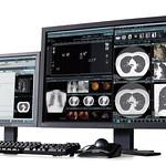 汎用画像診断装置ワークステーションの写真