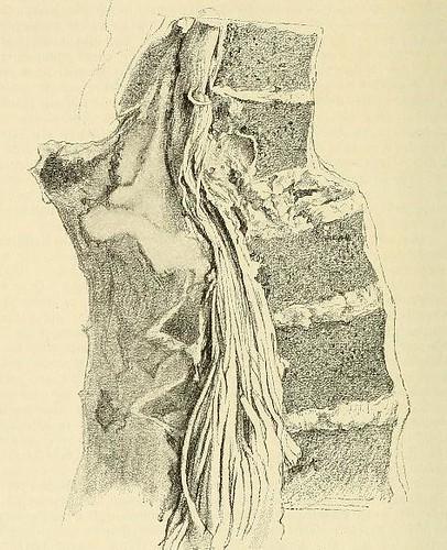 This image is taken from Page 58 of Beiträge zur Klinik der Rückenmarks- und Wirbeltumoren